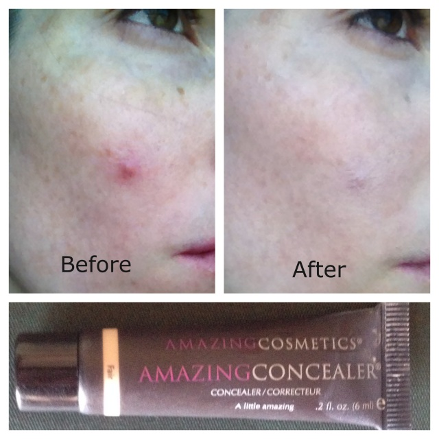 AmazingConcealer Before & After